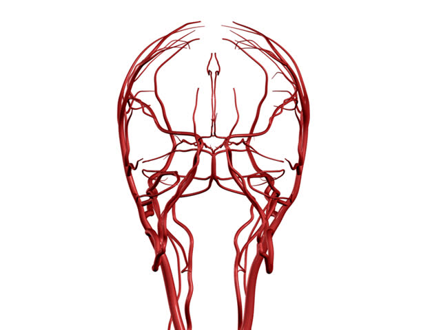 Brain Arteries PAL