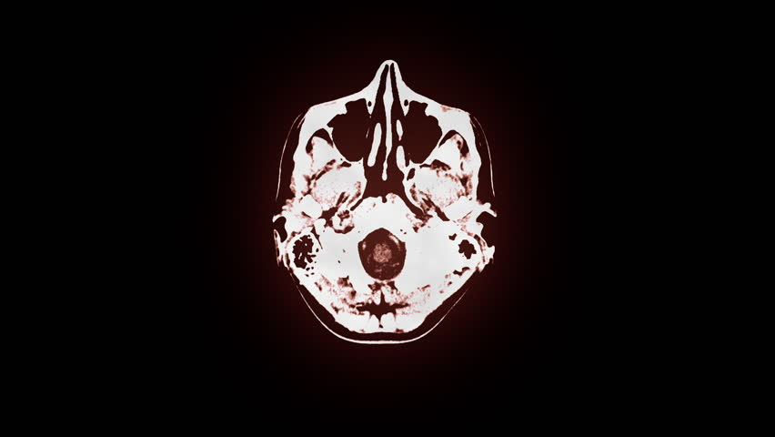 Human brain MRI scan. Top view. Smooth motion, brown tint. Source: Motion Graphics & Compositing. Clip ID: ax414c