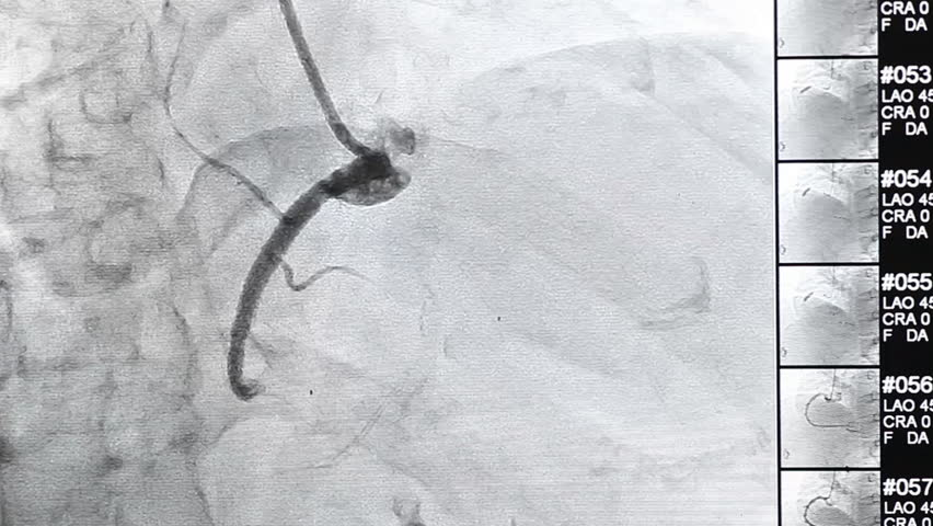 X-ray showing the correct placement of catheter ablation for atrial fibrillation