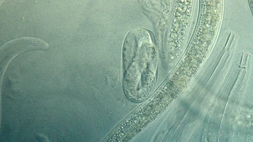 Caenorhabditis elegans, a free-living, transparent nematode (roundworm)